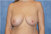 Breast Implant Removal Before Photo by George John Alexander, MD, FACS; Las Vegas, NV - Case 38675