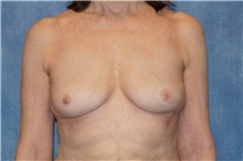 Breast Implant Removal After Photo by George John Alexander, MD, FACS; Las Vegas, NV - Case 38676