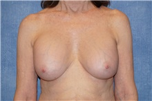 Breast Implant Removal Before Photo by George John Alexander, MD, FACS; Las Vegas, NV - Case 38676
