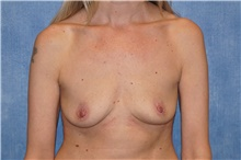 Breast Implant Removal After Photo by George John Alexander, MD, FACS; Las Vegas, NV - Case 38677