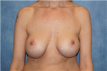 Breast Implant Removal Before Photo by George John Alexander, MD, FACS; Las Vegas, NV - Case 38677