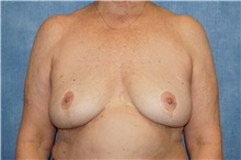 Breast Implant Removal After Photo by George John Alexander, MD, FACS; Las Vegas, NV - Case 38678
