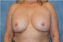 Breast Implant Removal Before Photo by George John Alexander, MD, FACS; Las Vegas, NV - Case 38678