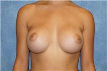 Breast Augmentation After Photo by George John Alexander, MD, FACS; Las Vegas, NV - Case 39674