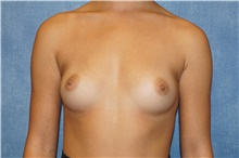 Breast Augmentation Before Photo by George John Alexander, MD, FACS; Las Vegas, NV - Case 39674