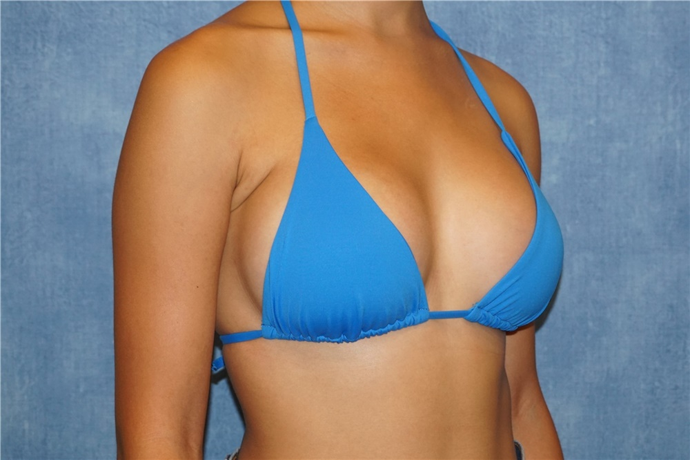 Breast Augmentation & Implants in Korea | Seoul TouchUp