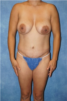 Mommy Makeover After Photo by George John Alexander, MD, FACS; Las Vegas, NV - Case 44036