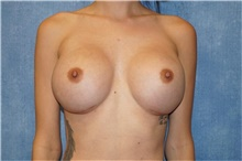 Breast Implant Revision After Photo by George John Alexander, MD, FACS; Las Vegas, NV - Case 44205