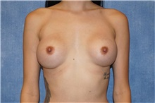 Breast Implant Revision Before Photo by George John Alexander, MD, FACS; Las Vegas, NV - Case 44205