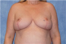 Breast Reduction After Photo by George John Alexander, MD, FACS; Las Vegas, NV - Case 44498