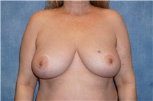 Breast Reduction Before Photo by George John Alexander, MD, FACS; Las Vegas, NV - Case 44498