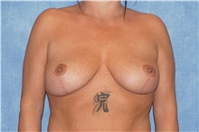 Breast Lift After Photo by George John Alexander, MD, FACS; Las Vegas, NV - Case 44500