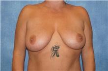 Breast Lift Before Photo by George John Alexander, MD, FACS; Las Vegas, NV - Case 44500