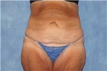 Tummy Tuck Before Photo by George John Alexander, MD, FACS; Las Vegas, NV - Case 44520