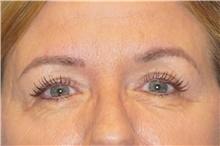Eyelid Surgery After Photo by George John Alexander, MD, FACS; Las Vegas, NV - Case 44526
