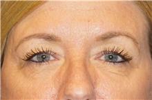 Eyelid Surgery Before Photo by George John Alexander, MD, FACS; Las Vegas, NV - Case 44526