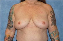 Breast Implant Removal After Photo by George John Alexander, MD, FACS; Las Vegas, NV - Case 44774