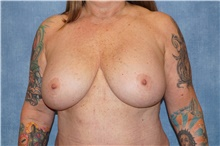 Breast Implant Removal Before Photo by George John Alexander, MD, FACS; Las Vegas, NV - Case 44774