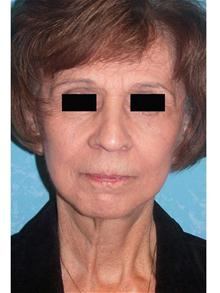Facelift After Photo by John Zavell, MD; Toledo, OH - Case 27482