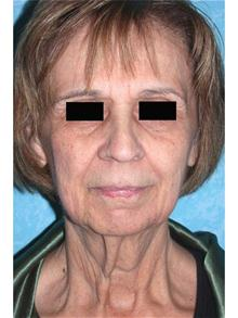 Facelift Before Photo by John Zavell, MD; Toledo, OH - Case 27482