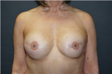 Breast Reconstruction After Photo by John Lindsey, MD; Metairie, LA - Case 31379