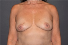 Breast Reconstruction Before Photo by John Lindsey, MD; Metairie, LA - Case 31379