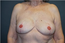 Breast Reconstruction After Photo by John Lindsey, MD; Metairie, LA - Case 31380