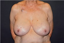 Breast Reconstruction Before Photo by John Lindsey, MD; Metairie, LA - Case 31380