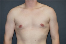Male Breast Reduction After Photo by John Lindsey, MD; Metairie, LA - Case 31381