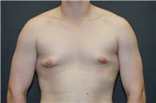Male Breast Reduction Before Photo by John Lindsey, MD; Metairie, LA - Case 31381