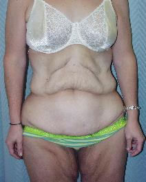 Body Contouring After Major Weight Loss Picture