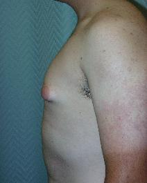 Male Breast Reduction Before Photo by John Gross, MD; Pasadena, CA - Case 7665