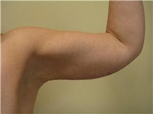 Arm Lift After Photo by Arnold Breitbart, MD; Manhasset, NY - Case 35425