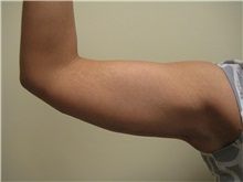 Arm Lift After Photo by Arnold Breitbart, MD; Manhasset, NY - Case 35426