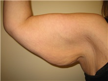 Arm Lift Before Photo by Arnold Breitbart, MD; Manhasset, NY - Case 35426