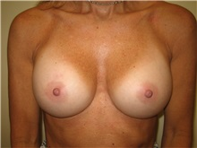 Breast Augmentation After Photo by Arnold Breitbart, MD; Manhasset, NY - Case 35431