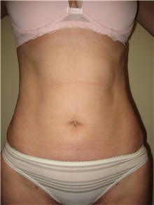 Liposuction After Photo by Arnold Breitbart, MD; Manhasset, NY - Case 35438