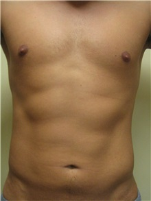 Liposuction After Photo by Arnold Breitbart, MD; Manhasset, NY - Case 35439