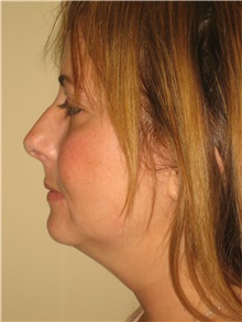 Liposuction Before Photo by Arnold Breitbart, MD; Manhasset, NY - Case 35441