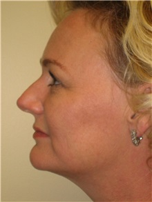 Liposuction After Photo by Arnold Breitbart, MD; Manhasset, NY - Case 35442