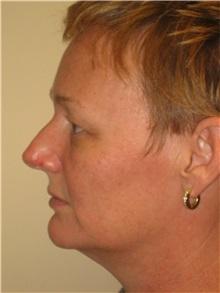 Liposuction Before Photo by Arnold Breitbart, MD; Manhasset, NY - Case 35442