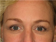 Eyelid Surgery After Photo by Arnold Breitbart, MD; Manhasset, NY - Case 35455