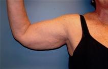 Arm Lift Before Photo by Joseph Woods, MD; Atlanta, GA - Case 22671
