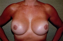 Breast Reconstruction After Photo by Joseph Woods, MD; Atlanta, GA - Case 22673