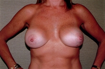 Breast Reconstruction Before Photo by Joseph Woods, MD; Atlanta, GA - Case 22673
