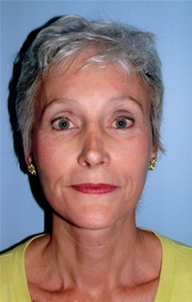Facelift After Photo by Joseph Woods, MD; Atlanta, GA - Case 22676