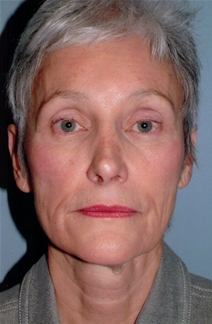 Facelift Before Photo by Joseph Woods, MD; Atlanta, GA - Case 22676