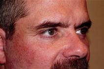 Eyelid Surgery After Photo by Joseph Woods, MD; Atlanta, GA - Case 22679