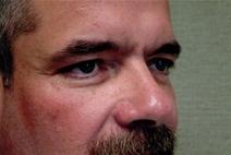 Eyelid Surgery Before Photo by Joseph Woods, MD; Atlanta, GA - Case 22679