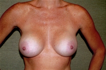 Breast Augmentation After Photo by Joseph Woods, MD; Atlanta, GA - Case 23030